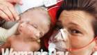 کودکی با دو صورت و دو مغز به دنیا آمد + عکس