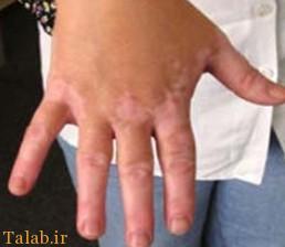 رژیم غذایی برای بیماری ویتیلیگو (لک و پیس)