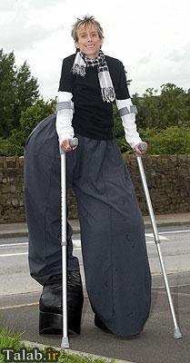مردی با پاهایی بیش از 110 کیلو !+ تصاویر