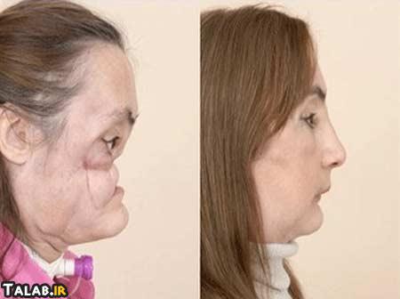 تصاویری از اولین پیوند اعضای صورت در جهان