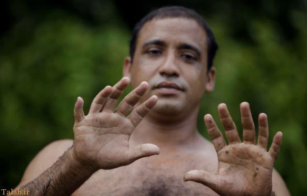 توانایی های عجیب مرد 24 انگشتی + عکس