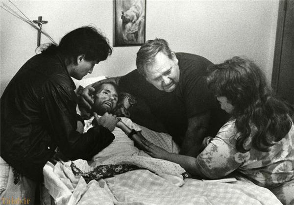 عکسی از بیمار ایدزی که دنیا را تکان داد !