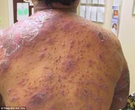 تصاویر دلخراش از وحشتناک ترین بیماریهای تاریخ بشر