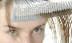 علت تغییرات هورمونی و ریزش مو