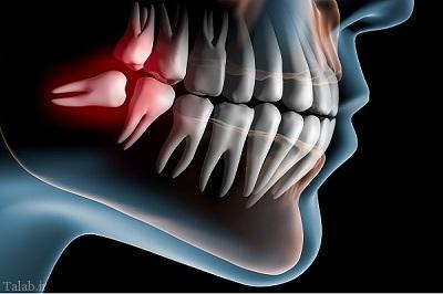 زنی که بخاطر اشتباه دندانپزشک پولدار شد !