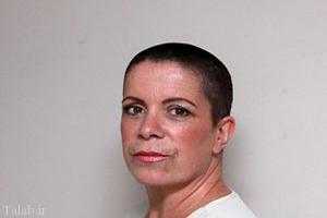 کچل شدن این خانم بخاطر اشتباه آرایشگر (عکس)