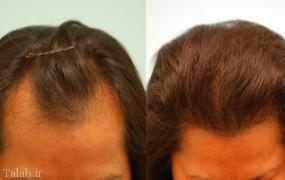 ریزش مو به صورت موضعی