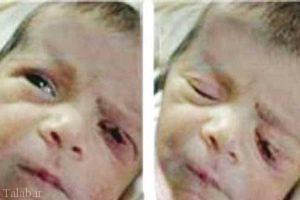 تیغ جراحی پلک این نوزاد را هنگام زایمان برید (عکس)