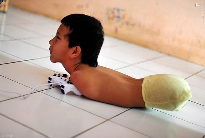 زندگی عجیب پسری که دست و پا ندارد !+ تصاویر