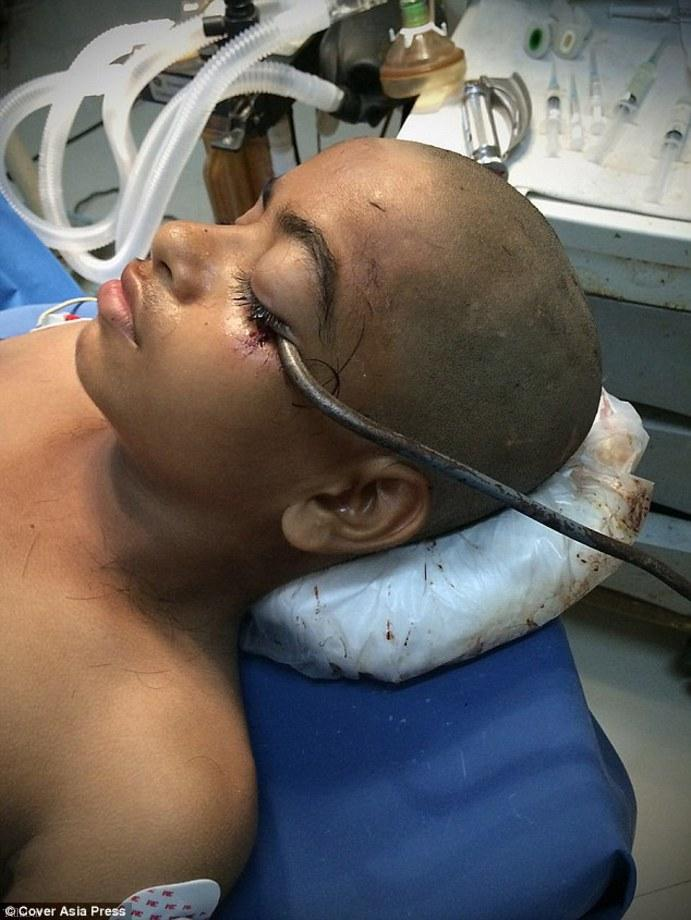میله بزرگ آهنی در چشم کودک هندی + تصاویر