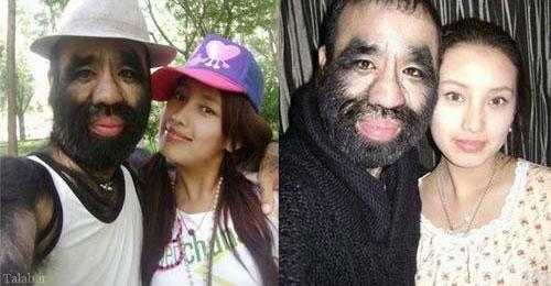 دختری که عاشق این مرد پشمالو است (عکس)
