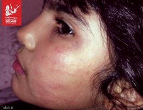 خشونت دندانپزشک مرد با دختر 6 ساله (عکس)