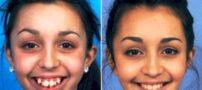 دختری زشت که با عمل فک زیبا شد !+ عکس