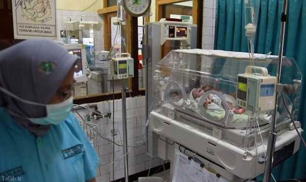تولد نوزادان عجیب الخلقه در اندونزی (+عکس)