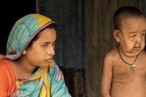 بیماری عجیب پسربچه 4 ساله بنگلادشی (+ تصاویر)