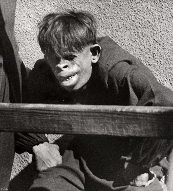 شباهت عجیب این انسان به گوریل !+ تصاویر