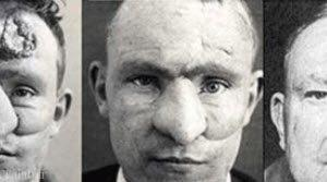 جراحی بینی نخستین فرد دنیا (عکس)