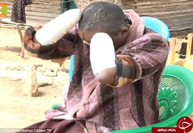 مردی روانی دستان همسرش را با ساتور قطع کرد + عکس