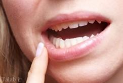 آفت دهان زخم سفید دردناك