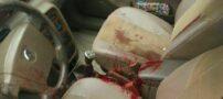 حادثه قتل جوان 34 ساله با اسلحه شکاری در آستارا (+عکس)