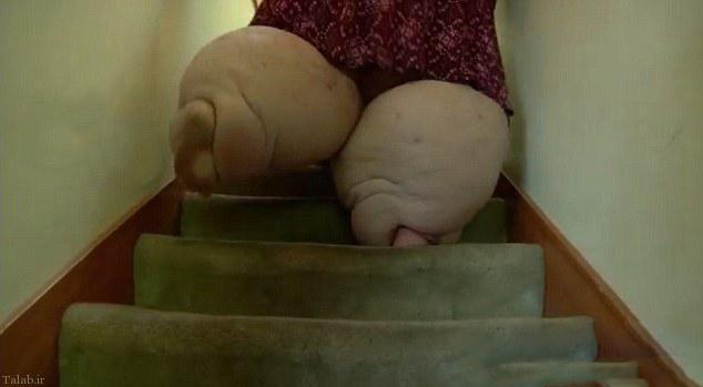 تصویری از چاق ترین زن مصری با نیم تن وزن
