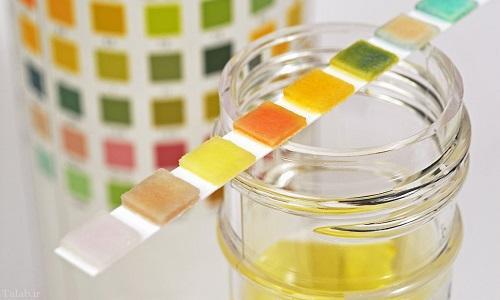 از رنگ ادرار سلامت خود را تشخیص دهید (+عکس)