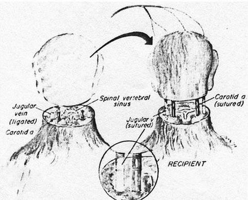عمل جراحی پیوند سر انسان در سال 2017 (+عکس)