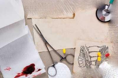 راههای پیشگیری و درمان بیماری بواسیر