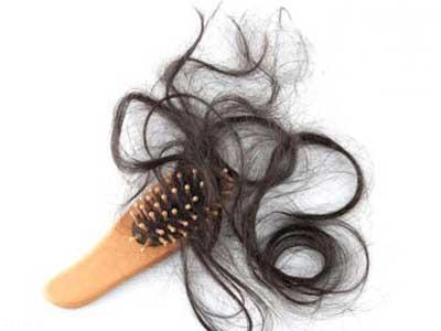 تجاوزی منجربه ریزش مو این دختر شده