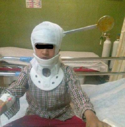 فرو رفتن کفگیر در سر کودک به خاطر دعوای خانوادگی + عکس