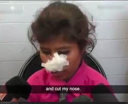 زنی که مورد حمله شوهرش قرار گرفت (+عکس)