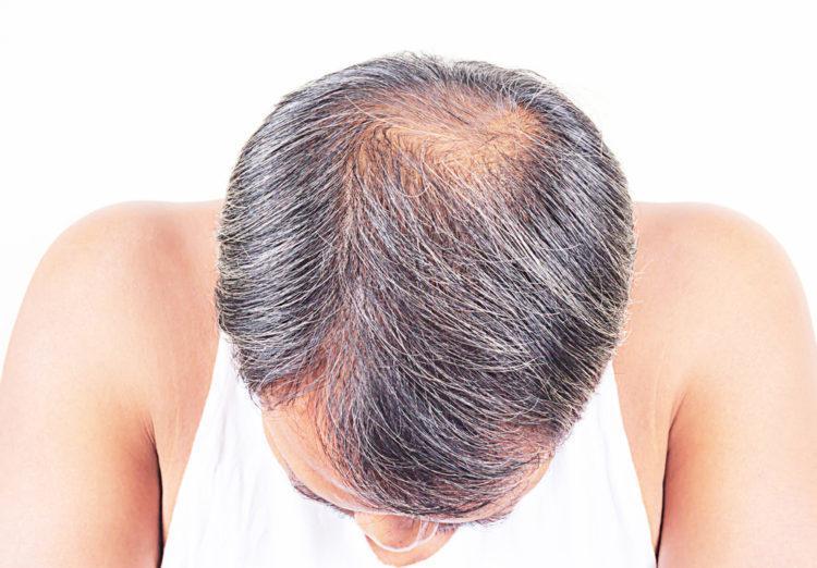وضعیت موی هر فرد