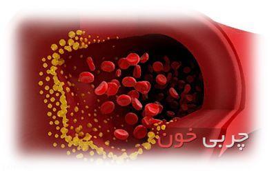 تأثیر گیاهان در کاهش چربی خون