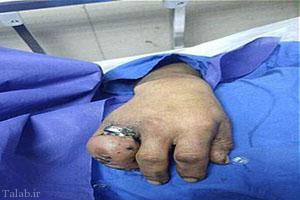 ورم وحشتناک دست مرد تهرانی به خاطر انگشتر تنگ + عکس