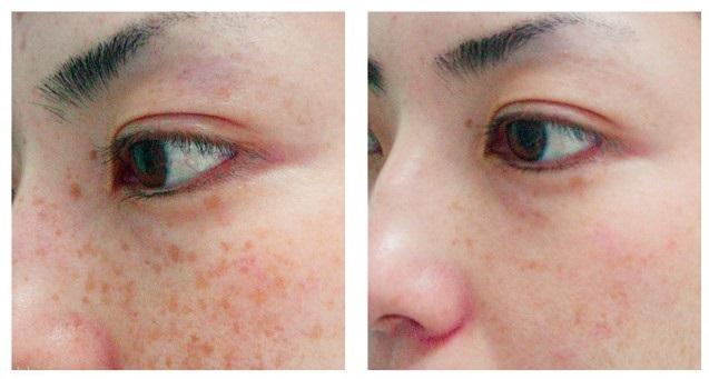قبل از لیزر درمانی
