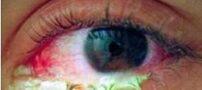 ترشحات چشم