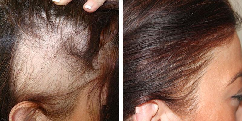 کاشت موی طبیعی در خانم های دارای طاسی