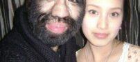 ماجرای عشق پر مو ترین مرد دنیا «مرد میمونی»