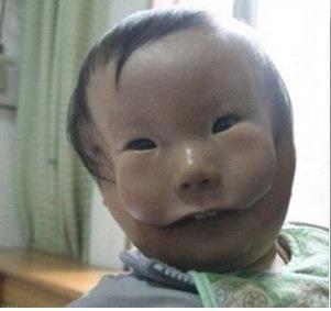نوزادی که با دوچهره به دنیا آمد + عکس