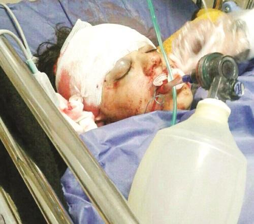 عروسی که مادر شوهرش با تبر او را کشت !+ عکس