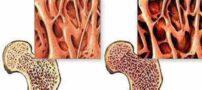 با عادت غذایی خاص پوکی استخوان را از خودتان دور کنید