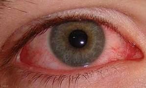قرمزی چشم بارز مصرفکنندگان حشیش