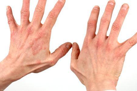 خشک شدن پوست دست