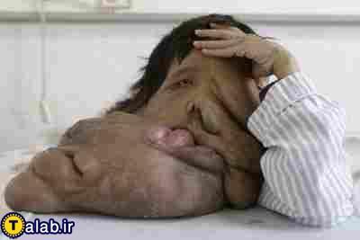 تصاویری از مرد عجیب الخلقه !!