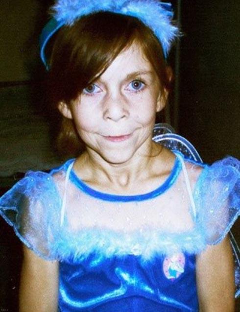 دختر جوانی که طی واکنشی عجیب ناگهان پیر شد (عکس)