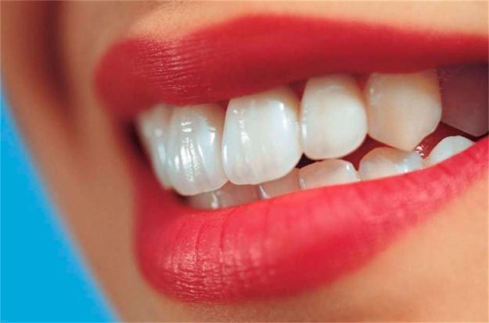 ایده های مناسب برای سفید کردن دندان ها