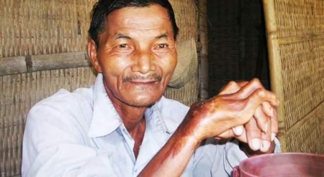معرفی عجیب و غریب ترین انسان های جهان (تصاویر)