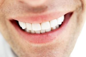 راهکارهای مناسب سفید کردن دندانها