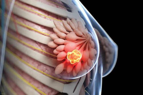 روش های جلوگیری از سرطان سینه در بانوان