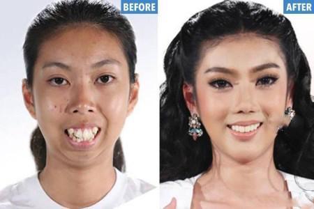تغییر چهره باورنکردنی این دختر جوان بعد از جراحی !! (+تصاویر)